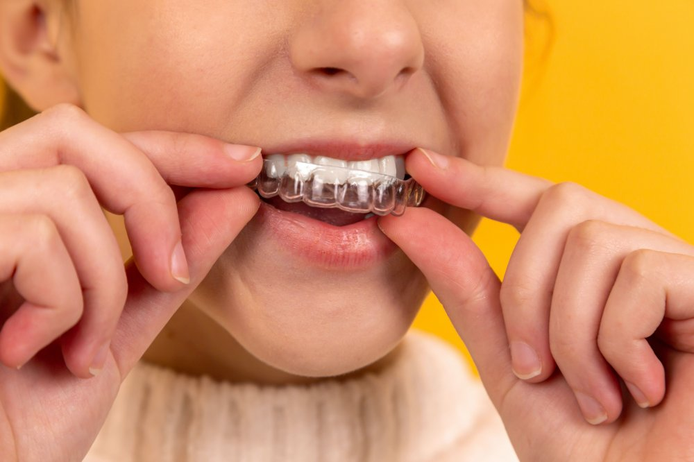 Myths About Invisalign for Teeth Misalignment